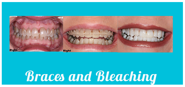 Braces and bleaching