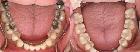 inlays for a natural smile