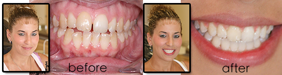 adult braces 6 month smiles