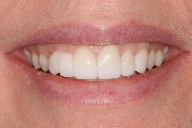 Veneers Can Restore Your Smile